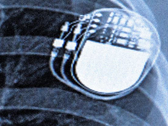 header-implantate.JPG